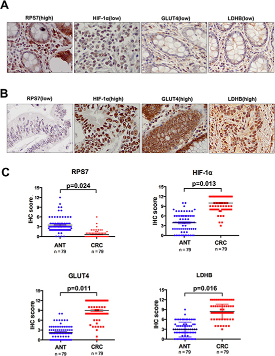 Immunohistochemical analyses of RPS7, HIF-1α, GLUT4 and LDHB expression.