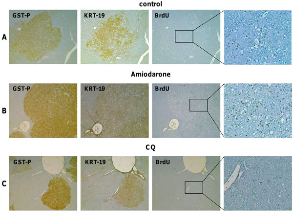 Effect of Amiodarone and Chloroquine administration on hepatocyte proliferation.