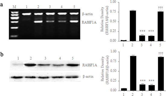 Differential expression of RASSF1A in different cell lines.