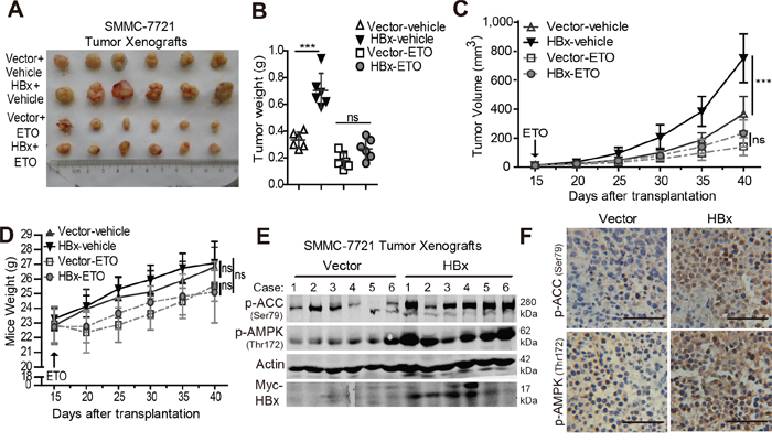 Overexpression of HBx enhances tumorigenic potential while inhibition of FAO reversed the tumor growth advantage in vivo.