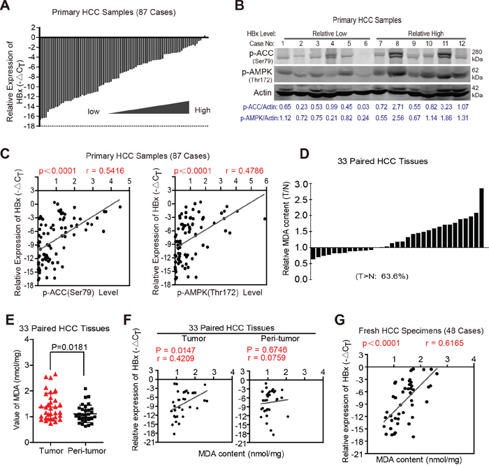 HBx expression levels are positively correlated with activation of AMPK signaling pathway and FAO in clinical HCC specimens.