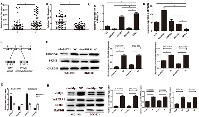 The expression of miR-let-7a and PKM2 in gastric cancer tissues and cell lines.