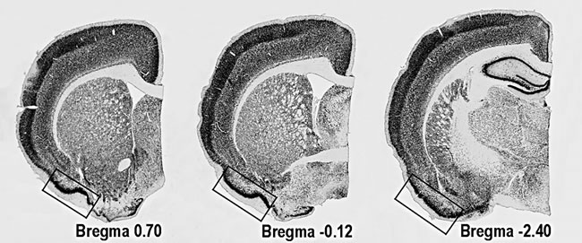 Location of PC on coronal sections of rat's brain.