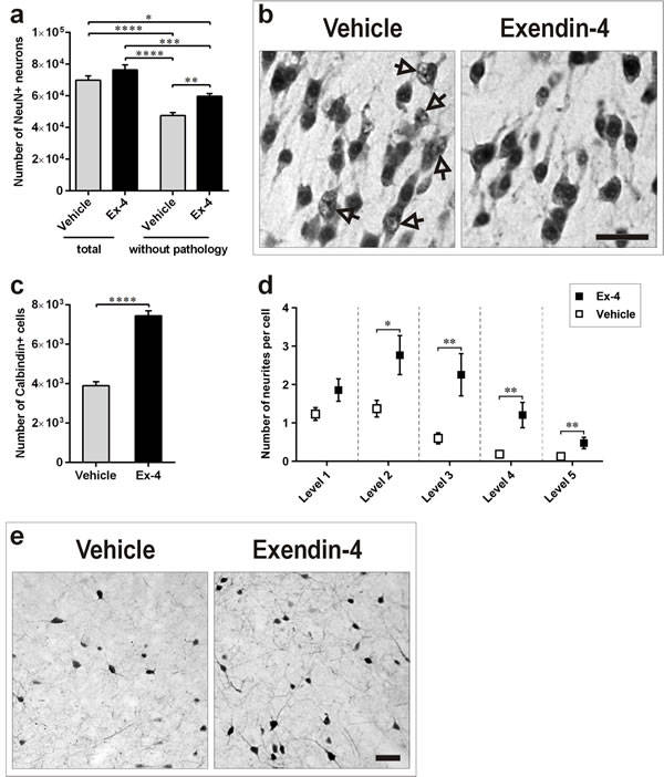 Ex-4 counteracts neuronal pathology in the PC of GK rats.