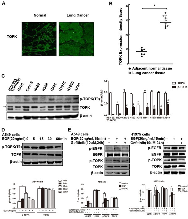 TOPK is overexpressed and activated in EGFR-TKI-resistant lung cancer cells.