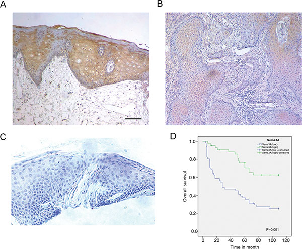 SEMA3A expression is reduced in HNSCC specimens and is associated with a poorer post-operative overall survival.