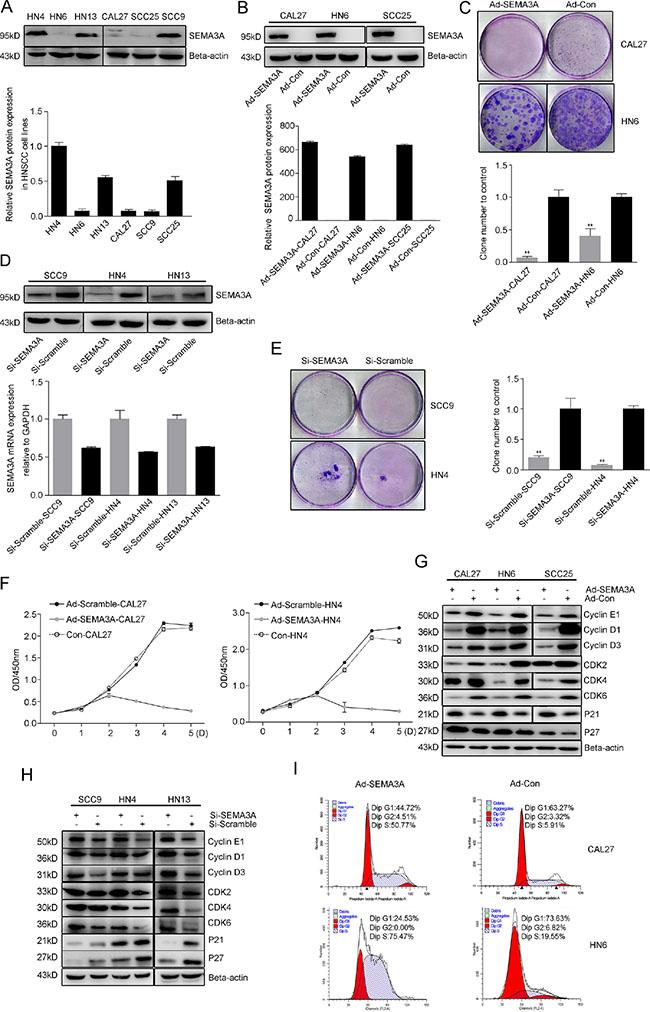 Endogenous SEMA3A inhibits HNSCC cell proliferation.