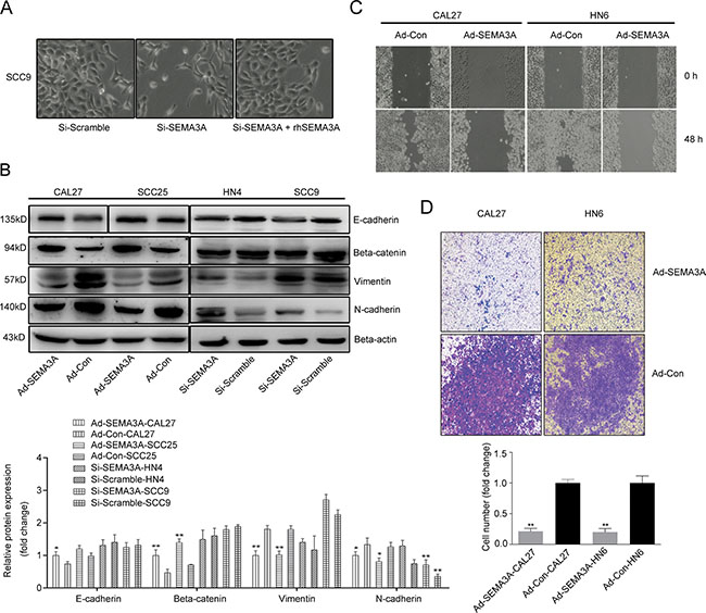 SEMA3A inhibits cancer cell migration and invasion and induces the reversion of EMT.