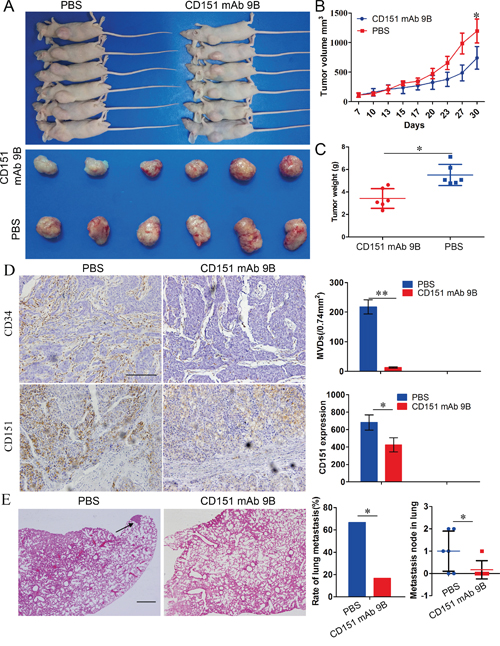 CD151 mAb 9B Inhibited the progression of HCCs in vivo.
