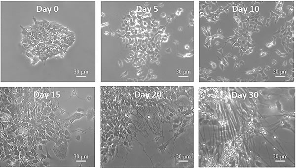Figure 4 : Bright field photographs of iPSCs before (Day 0) and during differentiation (Days 5, 10, 15, 20, 30) into neurons.