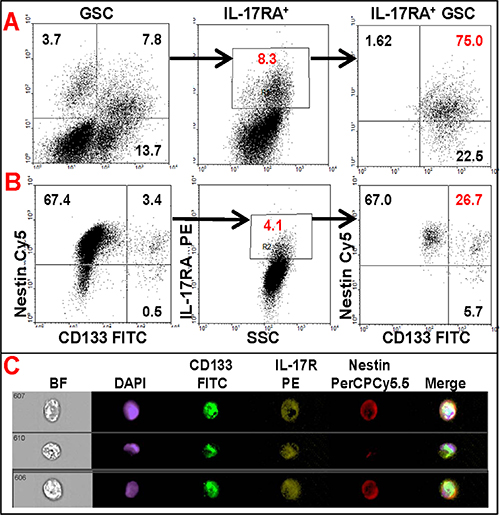 Flow cytometric analysis of primary glioma cells showing co-expression of IL-17R with GSC markers.