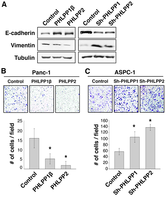 Knockdown of PHLPP expression induces EMT and promotes cell migration.