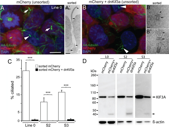 The expression of dnKif3a potently inhibits cilia formation in three GBM cell lines.