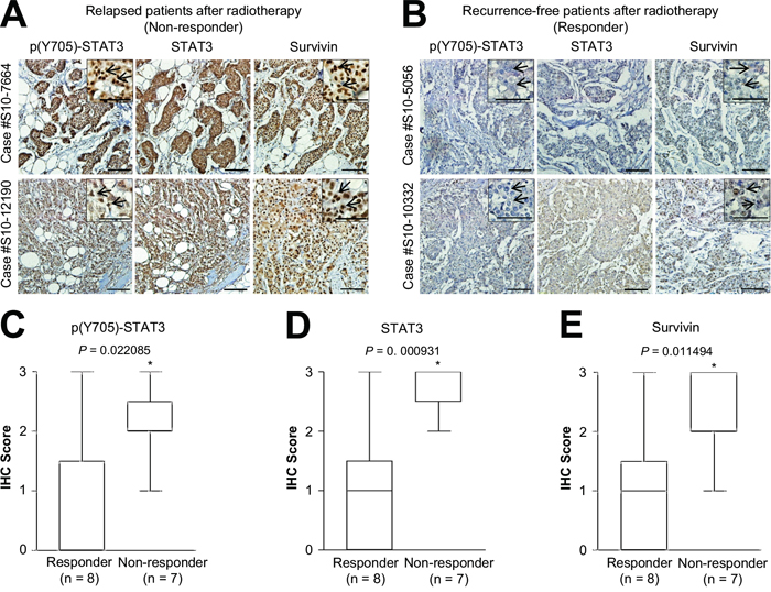 Positive correlation between phosphorylated STAT3, STAT3, and survivin expression and relapsed HER2-positive breast cancer after radiotherapy.