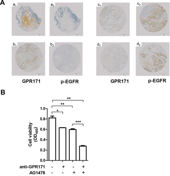 Inhibition of GPR171 enhances the anti-tumor effect of an EGFR inhibitor.