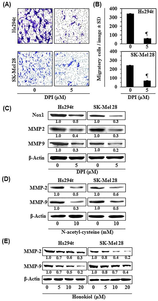 Diphenyleneiodonium chloride (DPI), an inhibitor of Nox1, inhibits melanoma cell migration.