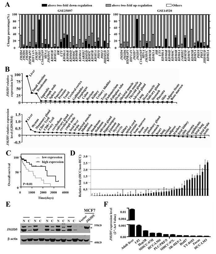 Tissue expression patterns and JMJD5 expression in HCC specimens and cell lines.