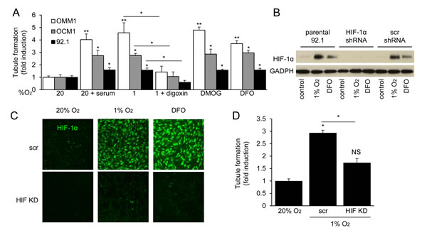 HIF-1α is necessary for the angiogenic potential of UM cells.