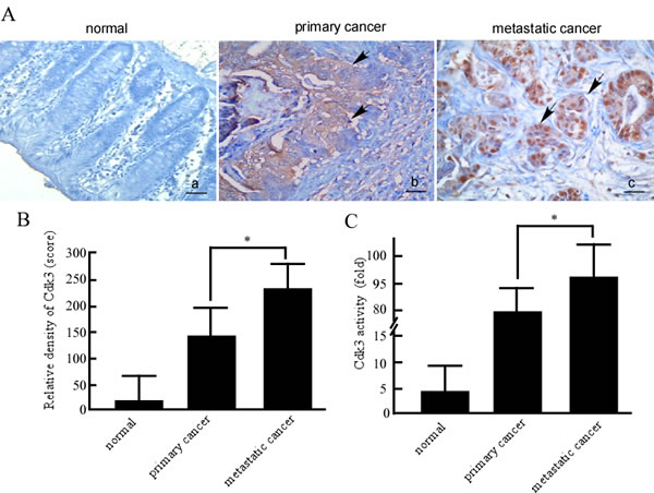 Cdk3 expression and activity in normal colorectal, primary cancer and metastatic cancer tissues.