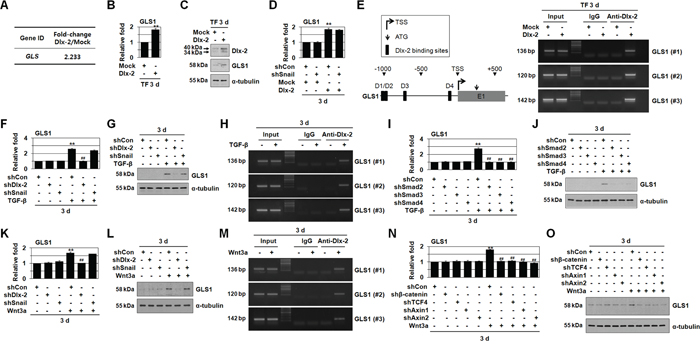 TGF-β and Wnt3a induces GLS1 expression by Dlx-2 activation.