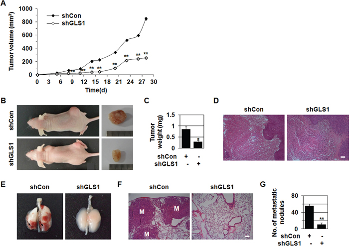 shGLS1 inhibits tumor growth and metastasis.
