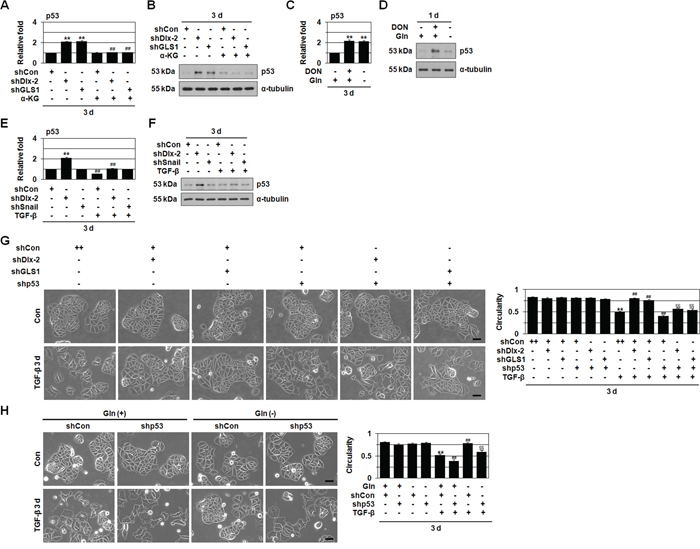 shDlx-2 or Gln metabolism inhibition increase the expression of p53.