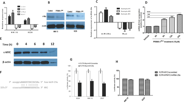 PRIMA-1Met down-regulates the transcriptional and translational expression of c-Myc in MM cells.