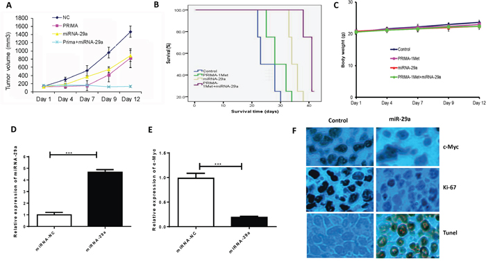 Lipid based delivery of synthetic miRNA-29 mimics retarded tumor growth and prolonged survival in human MM xenograft models.