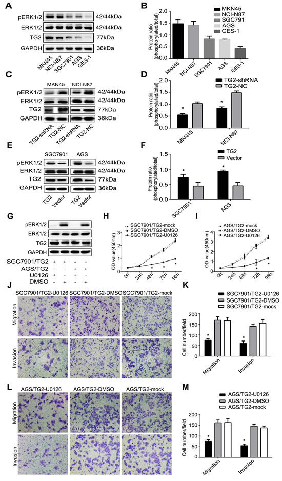 TG2 regulates cell proliferation, migration, and invasion