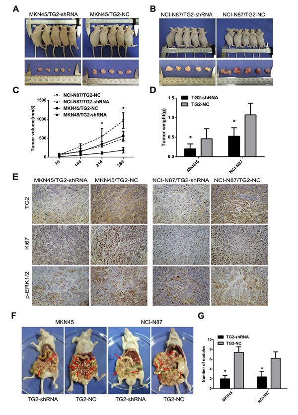 Knockdown of TG2 expression inhibits subcutaneous tumor growth and peritoneal and other metastases in nude mice.