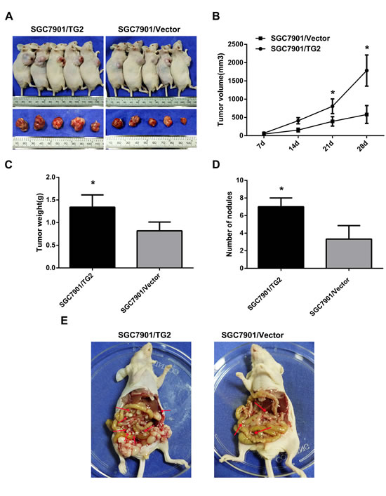 TG2 overexpression promotes subcutaneous tumor growth and peritoneal spread and metastasis in nude mice.