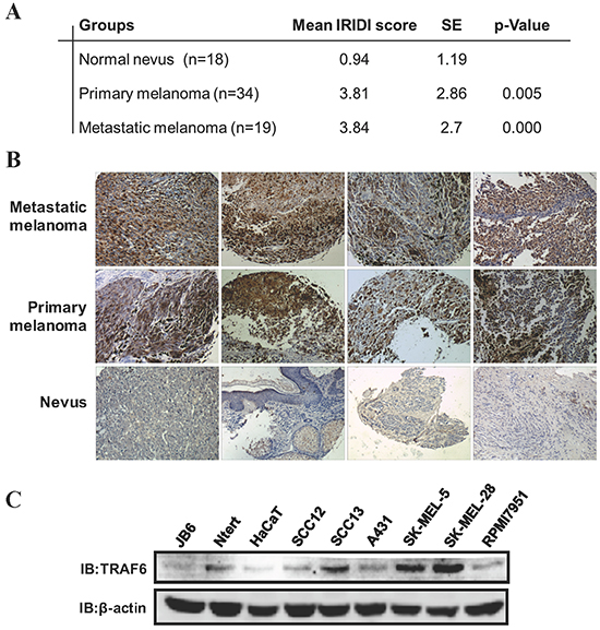 TRAF6 is highly expressed in melanoma.