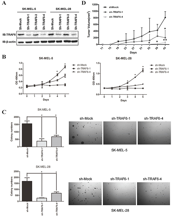 Downregulation of TRAF6 expression in human melanoma cells attenuates proliferation in vitro and in vivo.