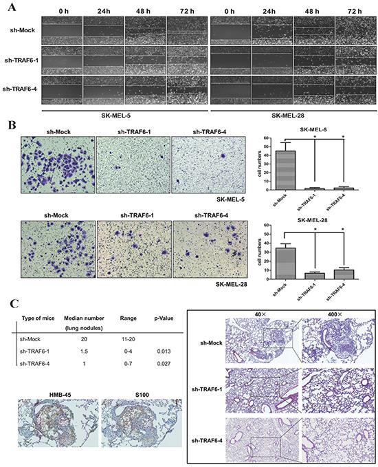 Knocking down TRAF6 inhibits melanoma invasiveness and metastasis in vitro and in vivo.
