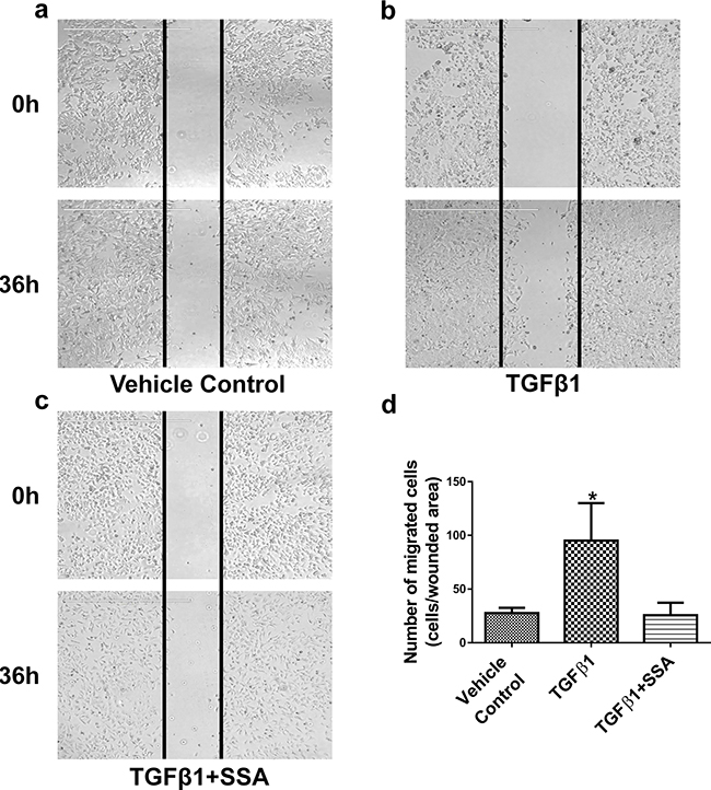 SSA inhibits MCF-7 cell motility induced by TGFβ1 as evaluated by a wound-healing assay.