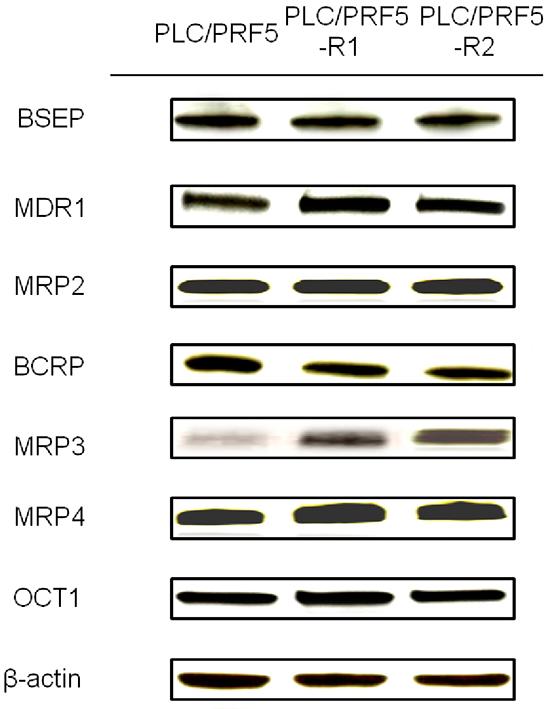 Expression of membrane transporters in sorafenib-resistant cells.