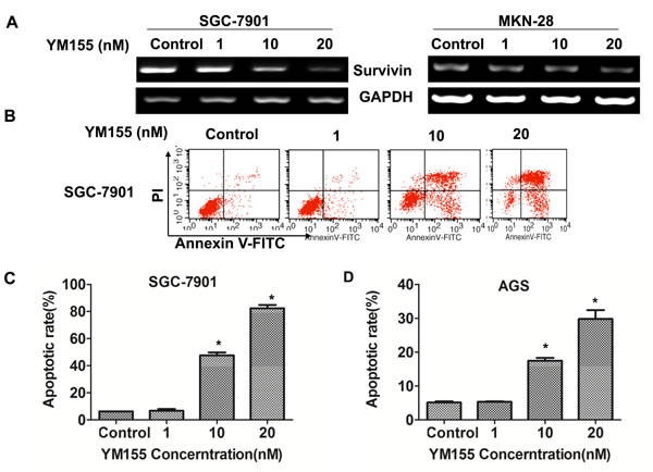 YM155 down-regulates survivin expression and induces apoptosis of gastric cancer cells.