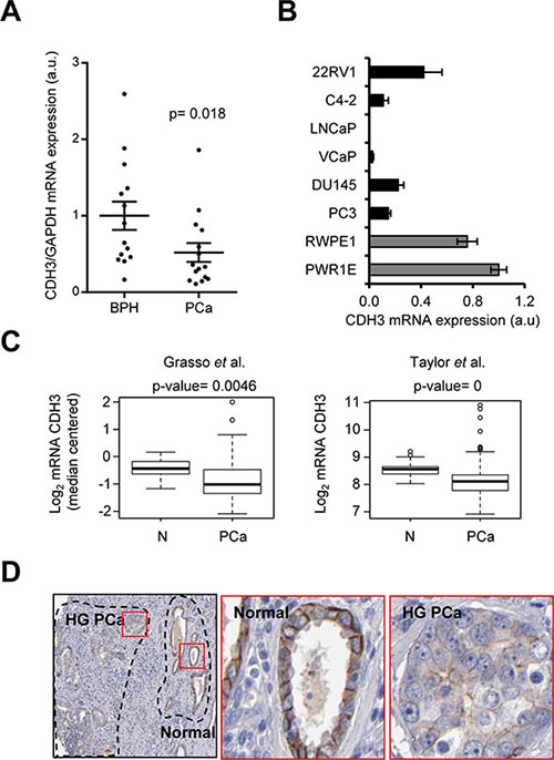 CDH3 expression is reduced in PCa specimens.