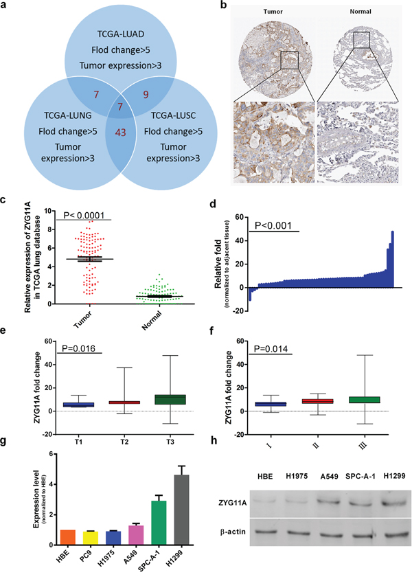 ZYG11A is highly expressed in NSCLC tissues.