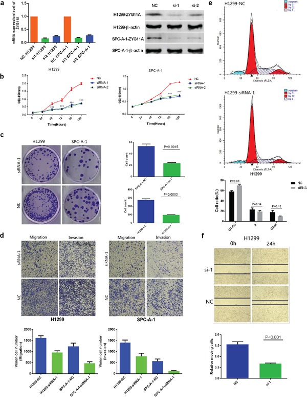 Knockdown of ZYG11A alters NSCLC cell line proliferation, migration, invasion, and cell cycle stage in vitro.