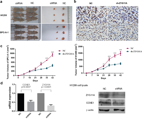 Knockdown of ZYG11A retards tumor growth in vivo.