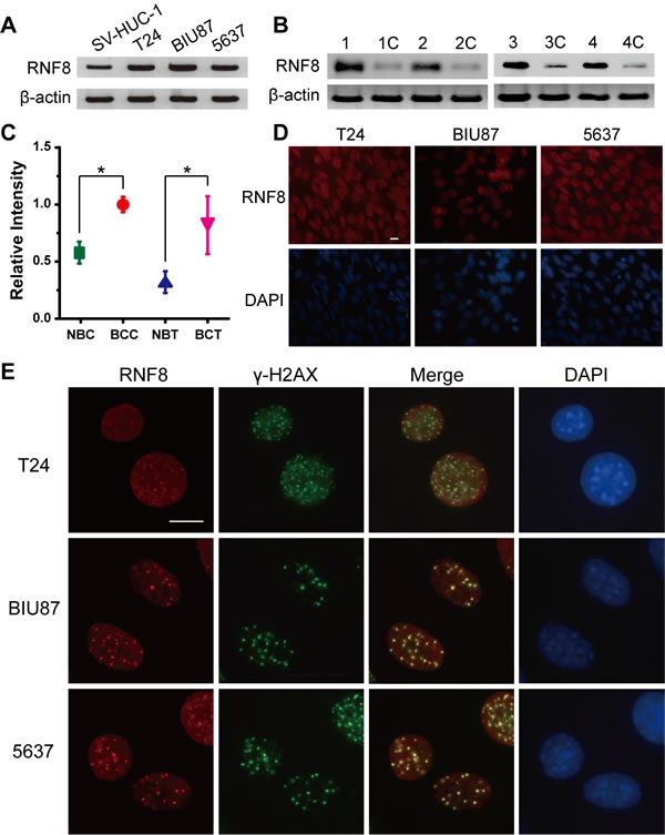 RNF8 is highly expressed in bladder cancer cells and accumulates at DSB sites.