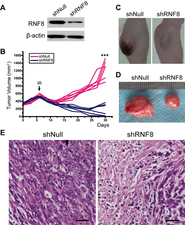 The effect of RNA interference to silence RNF8 on implanted T24 cell-based tumors in nude mice.