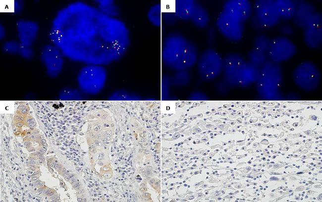 Intra-tumor heterogeneity regarding