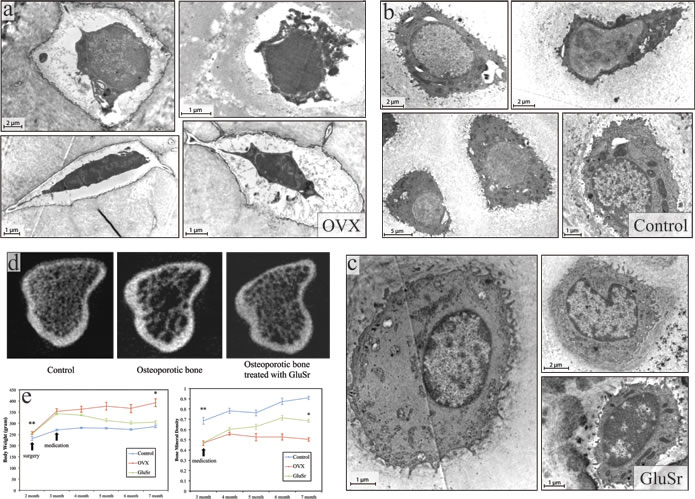 Ultrastructure of osteoblasts, microCT features, and the bone mineral density of the tibia of OVX rats and the OVX rats treated with strontium gluconate in comparison with healthy controls.