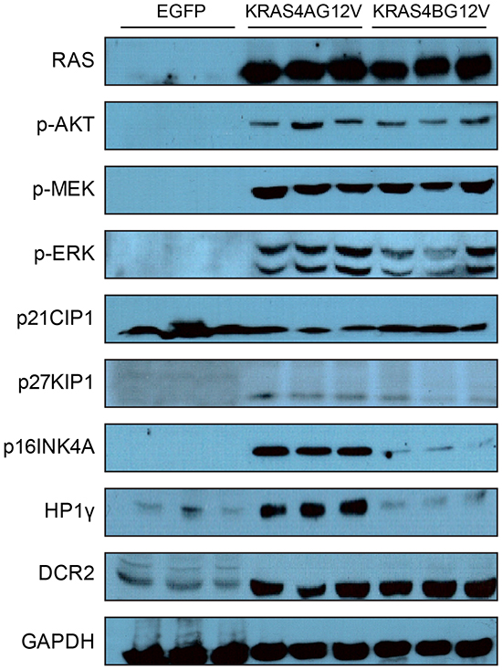 Expression levels of various genes and phosphorylation levels of RAS downstream effector molecules.