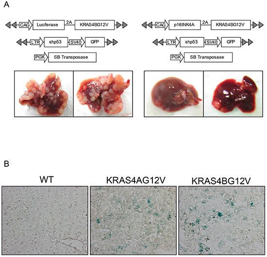 Overexpression of P16INK4A suppresses tumor growth driven by activated KRAS.