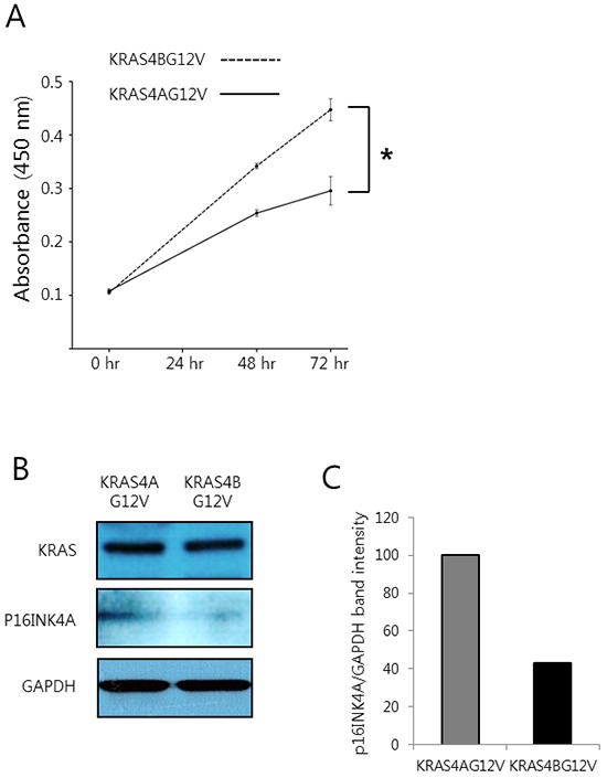 Colorectal cancer cells expressing KRAS4BG12V are more proliferative than those expressing KRAS4AG12V.