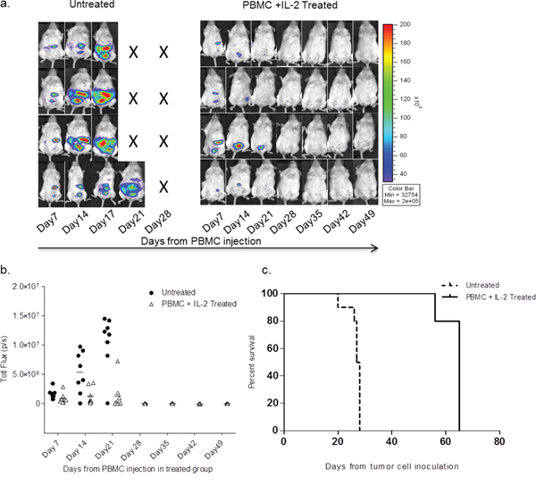 SKOV-3/GFP-Luc tumor bearing mice show complete remission of tumor upon healthy human PBMC and IL-2 treatment.