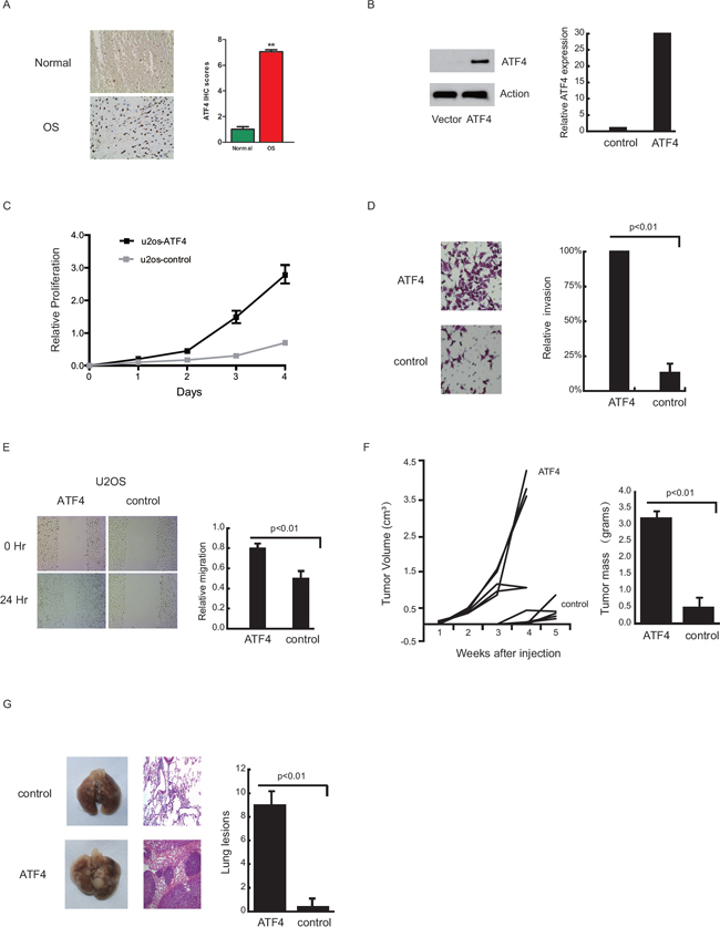 Ectopic ATF4 expression promotes cell growth, migration, tumor growth and pulmonary metastasis in an orthotopic OS mouse model.